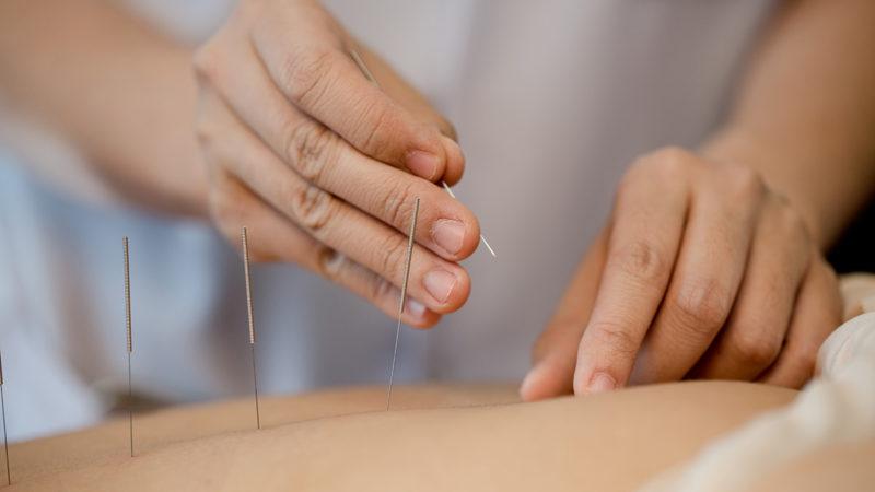 akupunktur_anwendung